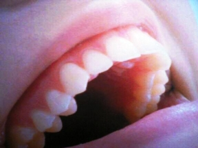 Salute delle gengive e cancro orale